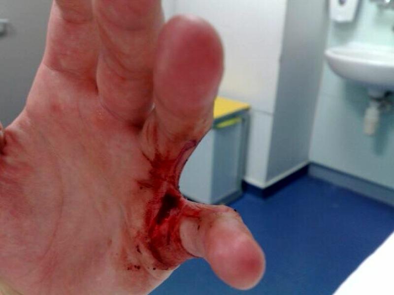 Ashley's Hand Injury